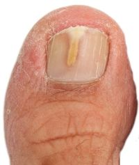 Toenail Fungus Symptoms