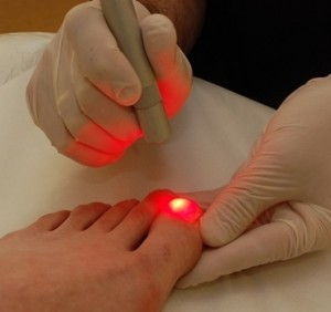 laser beam treatment toenail fungus