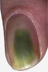 green nail syndrome nail fungus