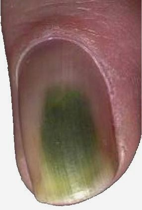 Green Nail Syndrome Fungus